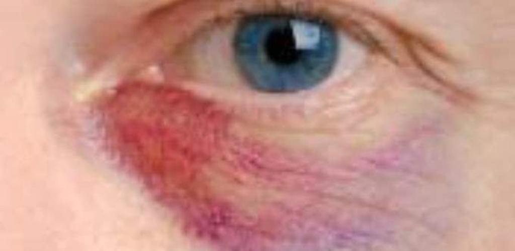 أفضل طرق علاج كدمات العين في المنزل